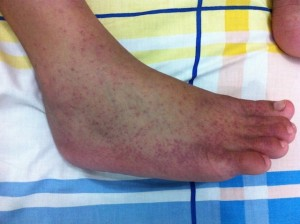 a rash caused by chikungunya virus infection