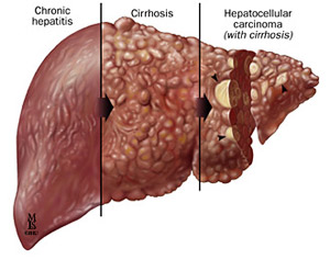 General progression of viral hepatitis in the liver